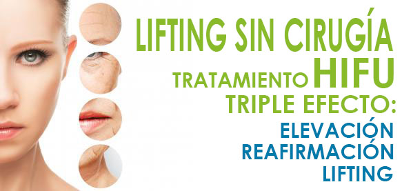 Lifting sin cirugía